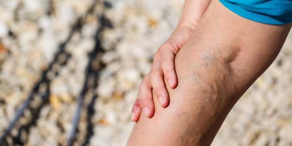 żylaki na nodze
